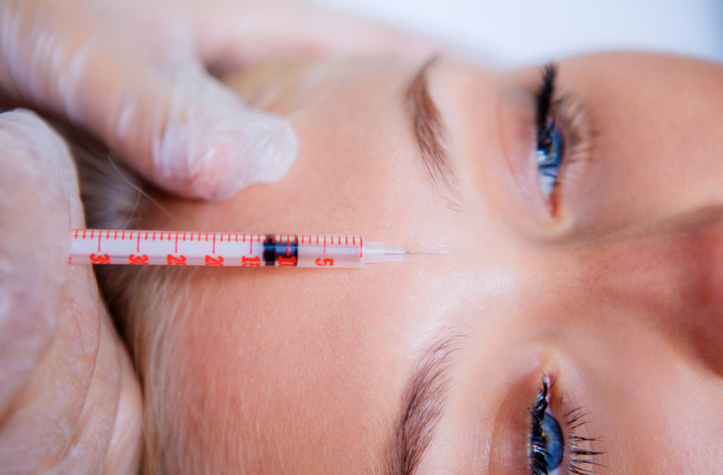 woman getting botox injected between her eyebrows
