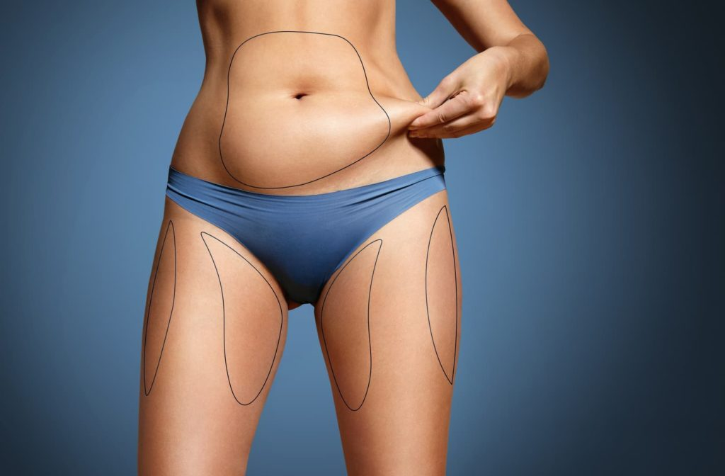 Woman pinching her stomach fat with lines drawn around target fat areas for coolsculpting
