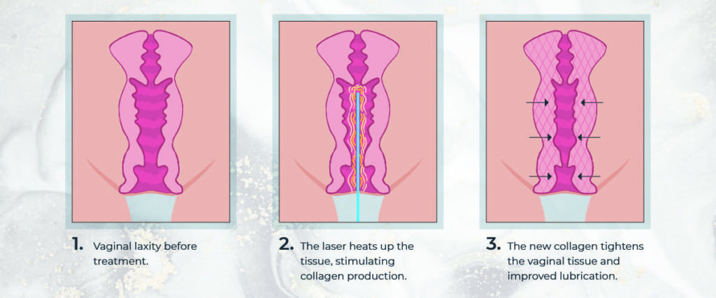 Diagram showing how laser treatment for vaginal tightness works