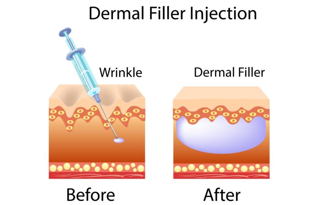 Illustration of before and after of dermal filler injection