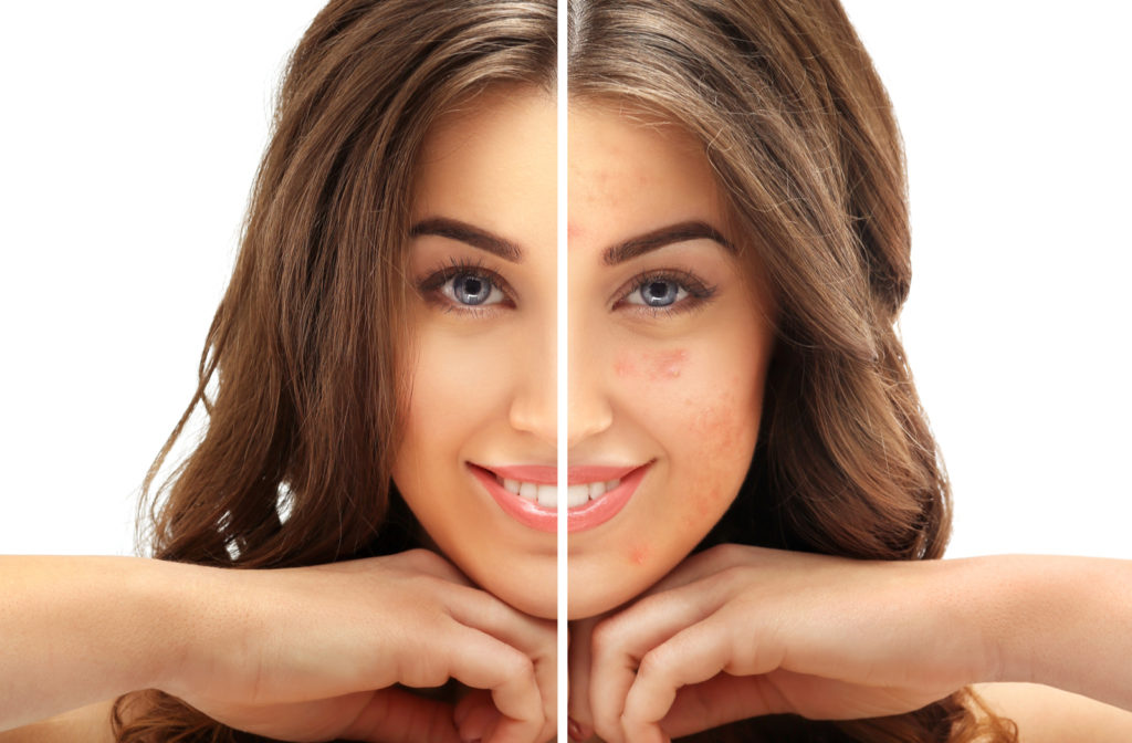 Before and after results of young woman who underwent laser scar removal for acne on her face.
